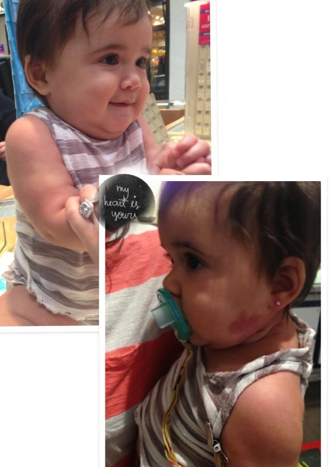 Baby got her ears peirced❤